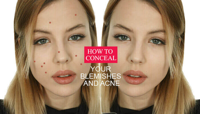 How To Conceal Your Blemishes And Acne