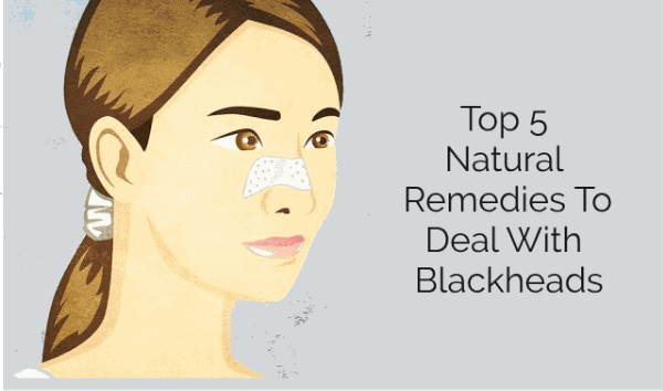 Top 5 Natural Remedies To Deal With Blackheads
