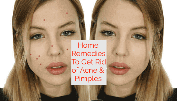 Home Remedies To Get Rid of Acne & Pimples
