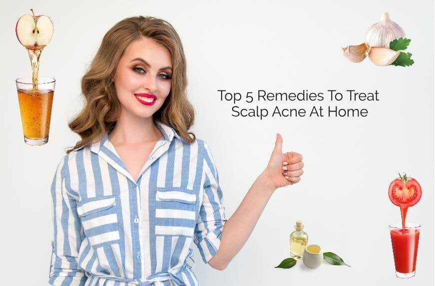 Top 5 Remedies To Treat Scalp Acne At Home