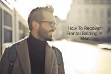 frontal_balding_men