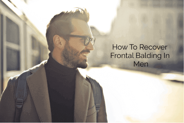 How To Recover Frontal Balding In Men