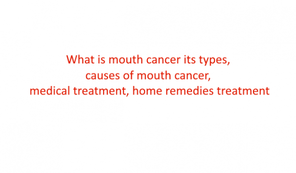 What is mouth cancer its types, causes, medical treatment, home remedies